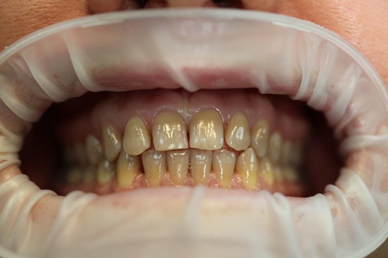Фотопротокол имплантации